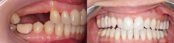 Before and after dental implants at Euston Place Dental Practice in Leamington Spa