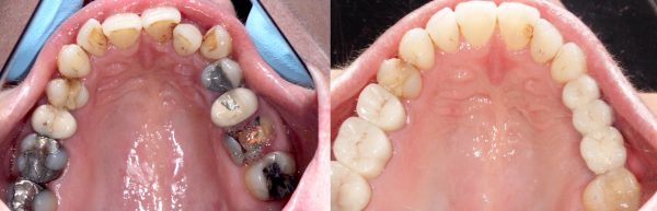 Before and after smile makeover at Euston Place Dental Practice in Leamington Spa