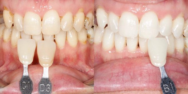 Before and After Teeth Whitening at Euston Place Dental Practice in Leamington Spa