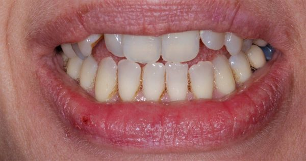 Patient before having a smikle makeover at Euston Place Dental in Leamington Spa Warwickshire