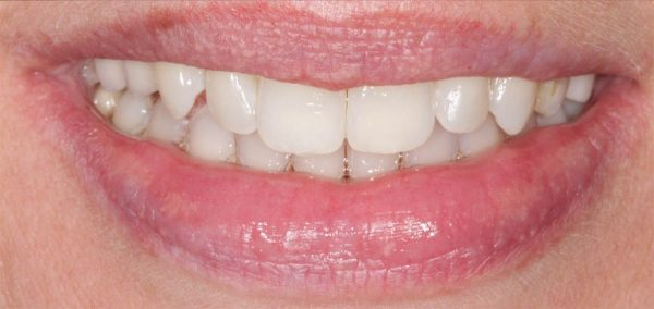 Smile Makeove result at Leamington Spa dentist Euston Place Dental Practice in Warwickshire