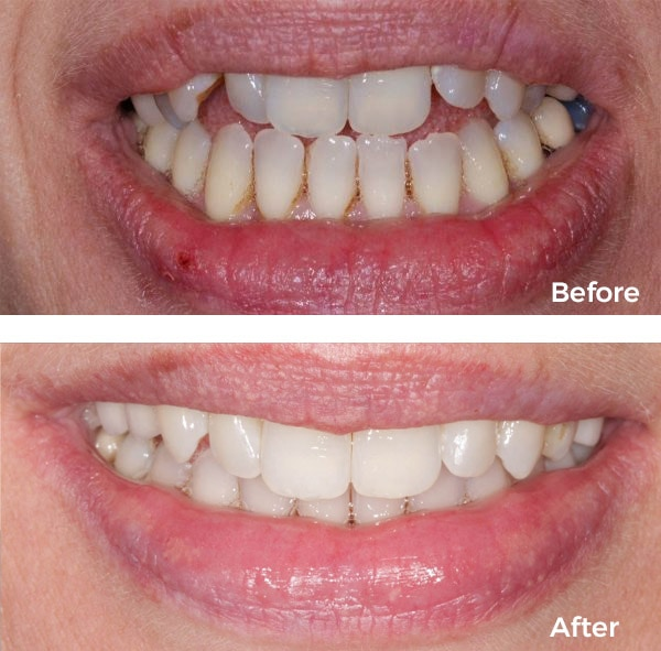 invisalign results in warwickshire