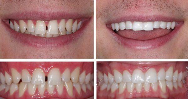 composite bonding warwickshire dentist