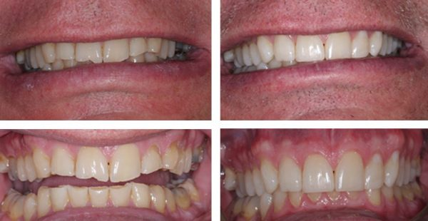 dentist warwickshire composite bonding