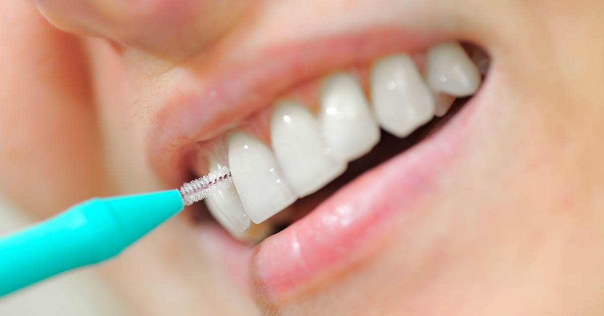 interdental cleaning advice warwickshire