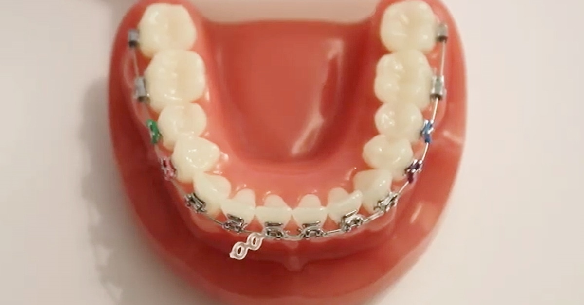 orthodontic repairs at home during covid19